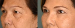 Blepharoplasty Before and After Patient 3A