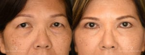Blepharoplasty Before and After Patient 3B