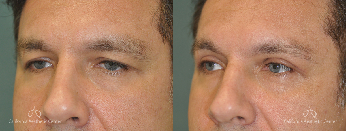 Blepharoplasty Before and After Photos Patient 4