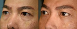 Blepharoplasty Before and After Photos Patient 5A
