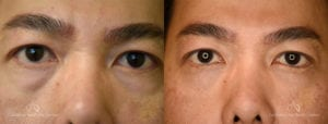 Blepharoplasty Before and After Photos Patient 5B