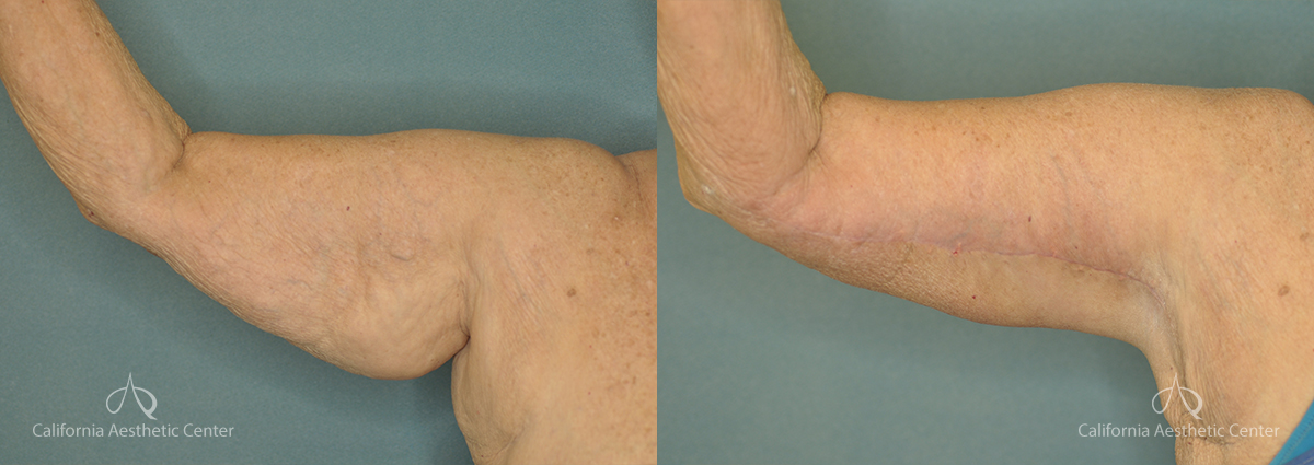 Brachioplasty Before and After Patient 1A