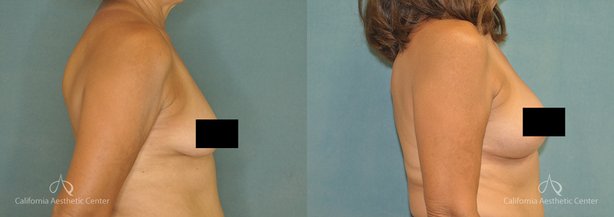Before & After Breast Augmentation Patient