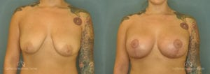 Breast Augmentation Before and After Patient 3E