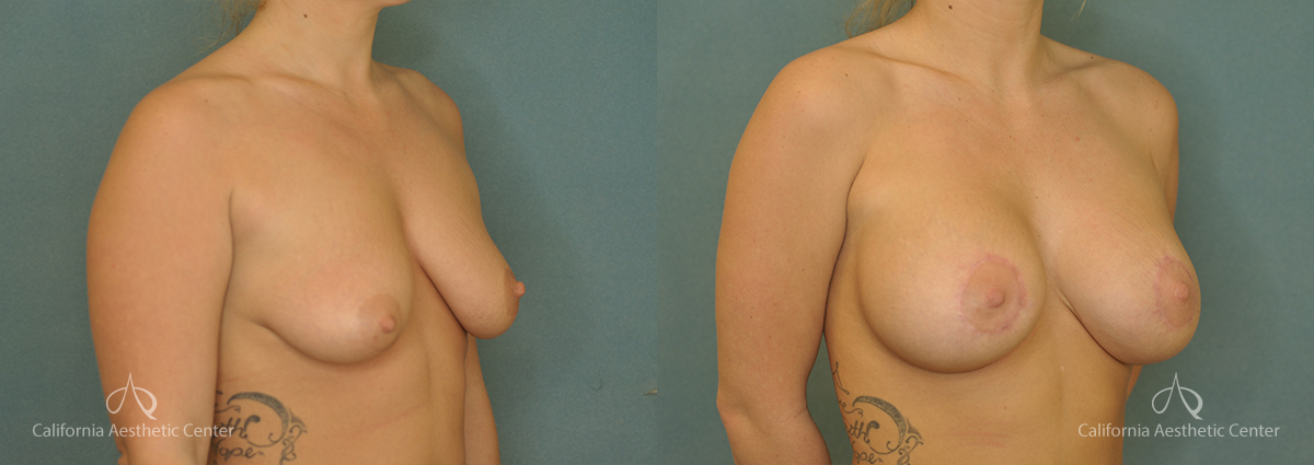 Breast Augmentation Before and After Patient 4A