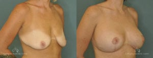 Breast Lift Before and After Photos Patient 1B
