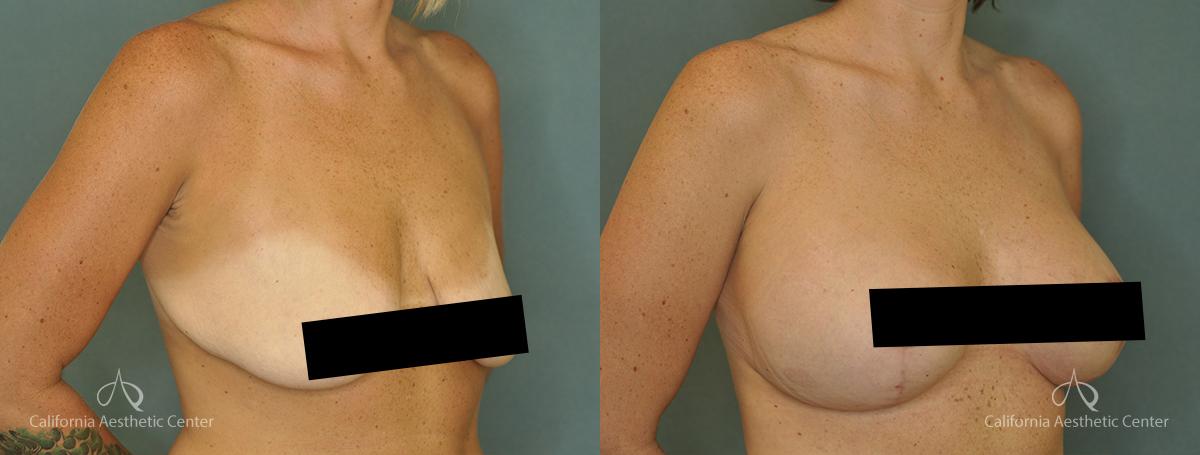 Dr.VU_Breast-Lift_Patient_1b_Censored2