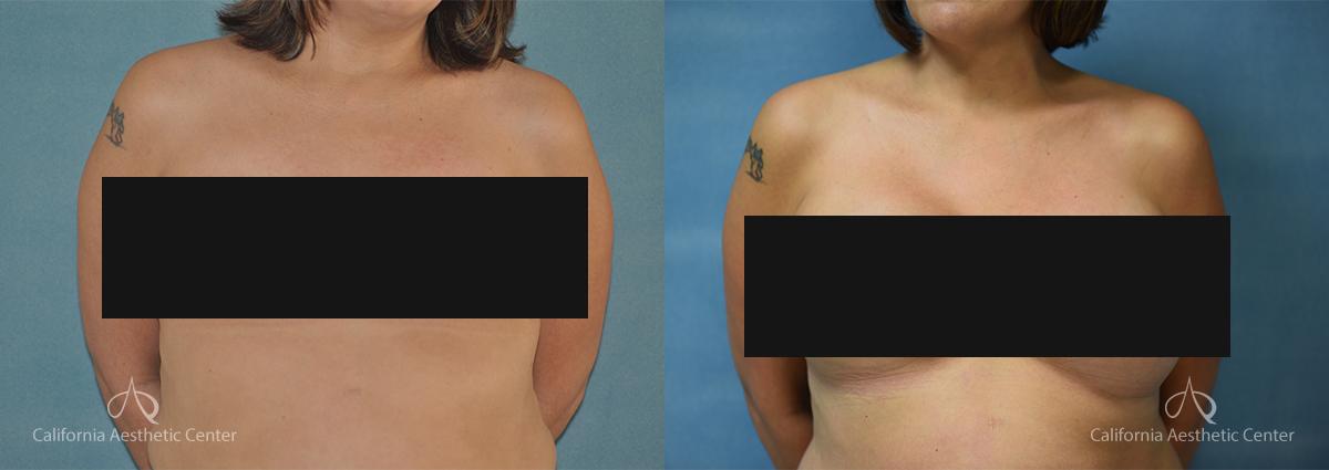 Dr.VU_Breast-Reconstruction_Patient_1c_CENSORED