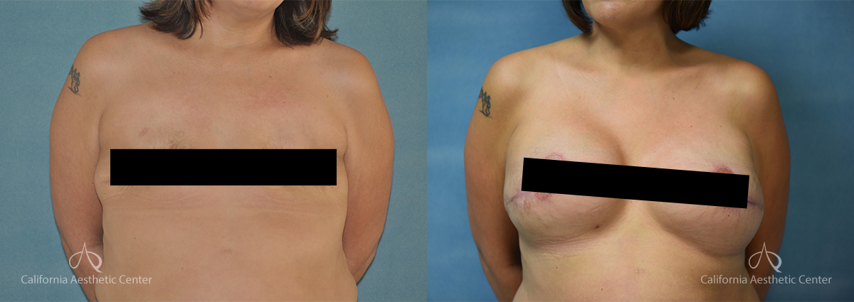 Dr.VU_Breast-Reconstruction_Patient_1c_Censored2