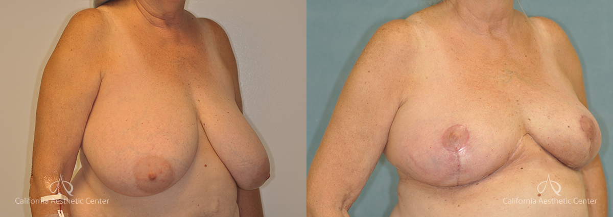 Breast Reduction Before and After Photos Patient 1A