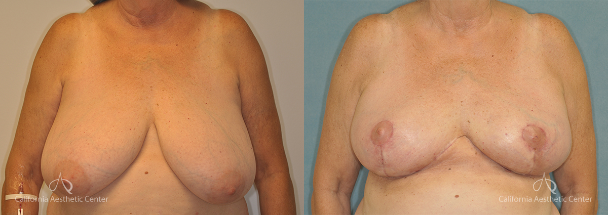 Breast Reduction Before and After Photos Patient 1E
