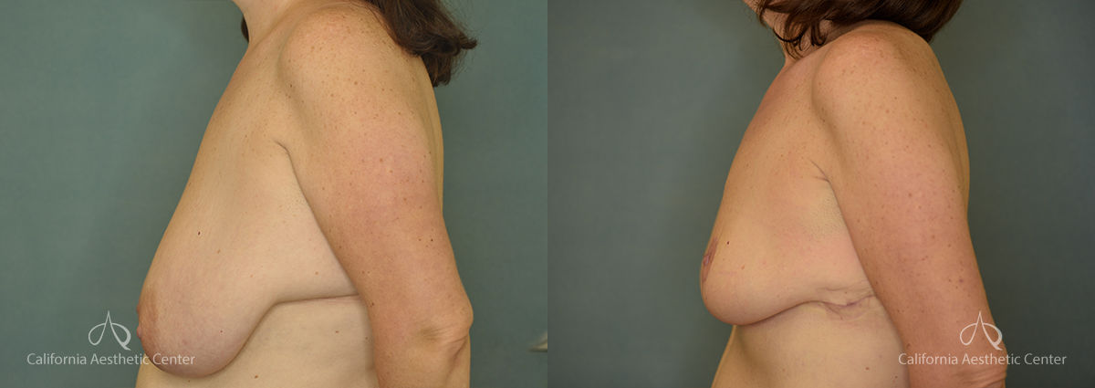 Breast Reduction Before and After Photos Patient 2A