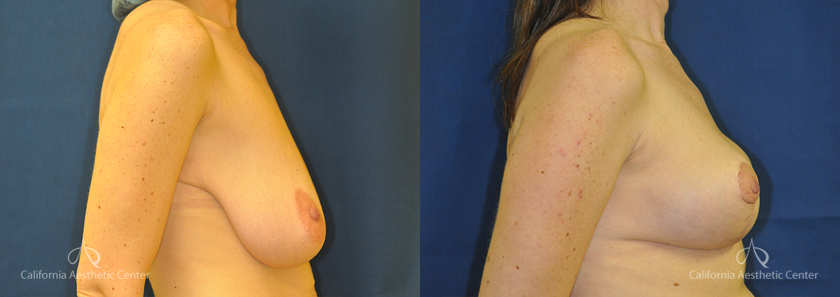 Breast Reduction Before and After Photos Patient 3A