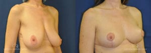 Breast Reduction Before and After Photos Patient 3B