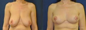 Breast Reduction Before and After Photos Patient 3C