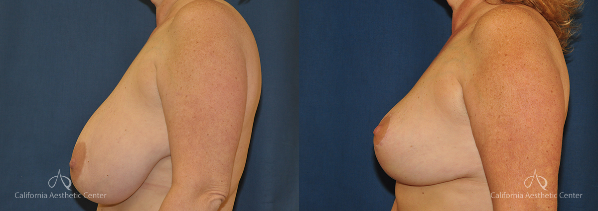 Breast Reduction Before and After Photos Patient 4A
