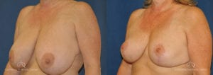 Breast Reduction Before and After Photos Patient 4B