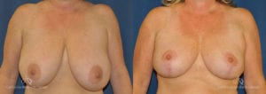 Breast Reduction Before and After Photos Patient 4C