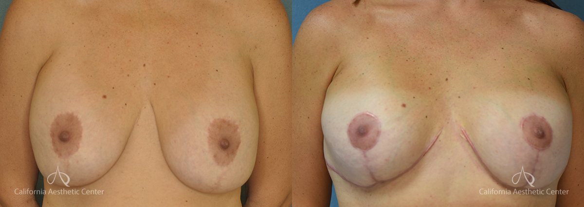 Breast Reduction Before and After Photos Patient 5C