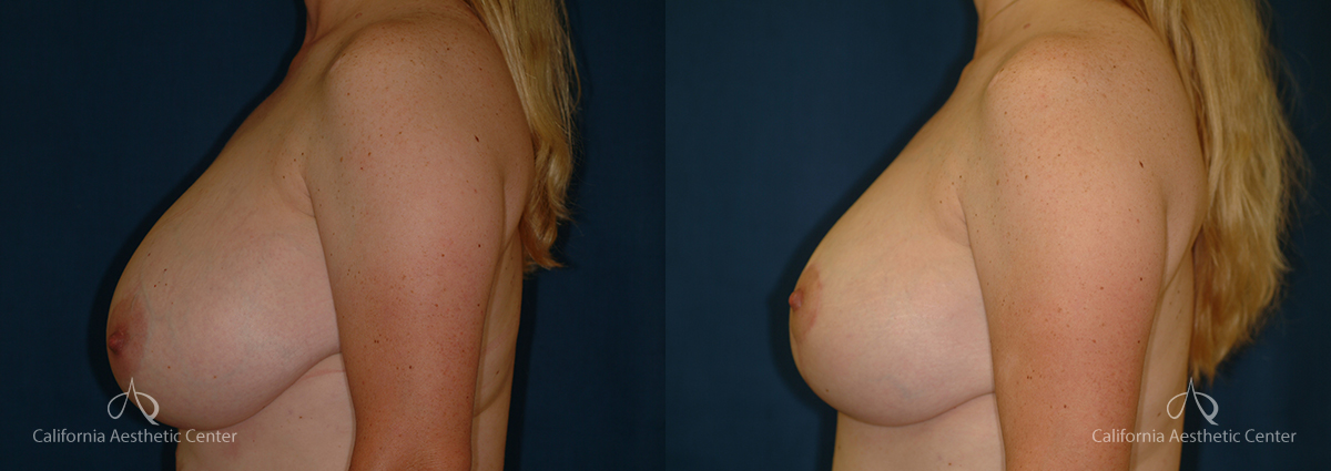Breast Reduction Before and After Photos Patient 6A