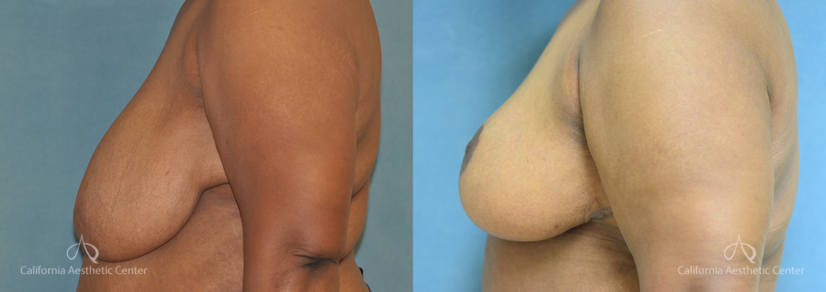 Breast Reduction Before and After Photos Patient 7A