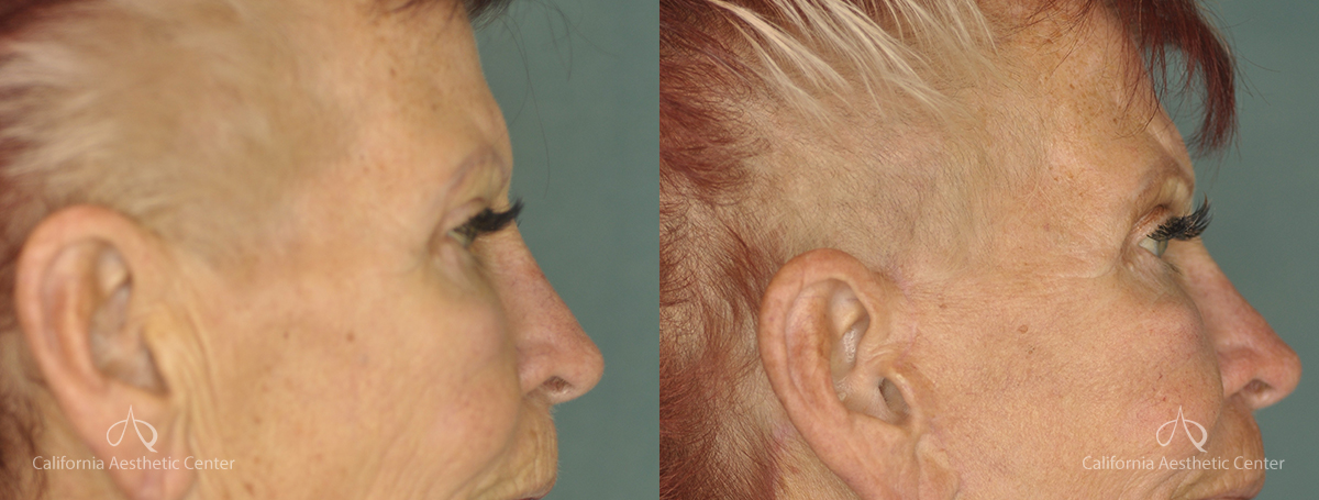 Brow Lift Before and After Photos Patient 1A