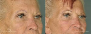 Brow Lift Before and After Photos Patient 1B