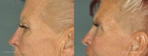 Brow Lift Before and After Photos Patient 1C