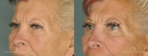 Brow Lift Before and After Photos Patient 1D