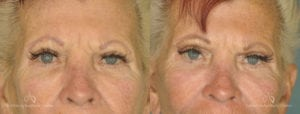 Brow Lift Before and After Photos Patient 1E