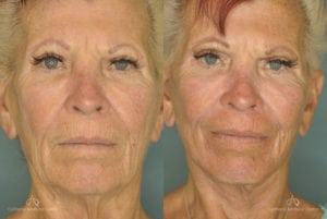 Face Lift Before and After Photos Patient 1A
