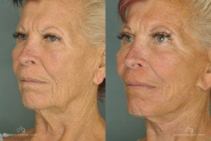 Face Lift Before and After Photos Patient 1B