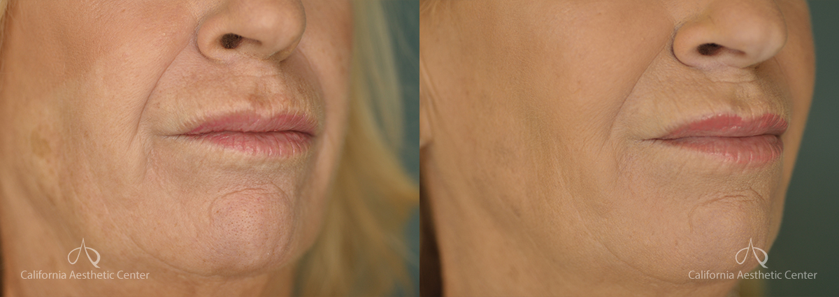 Radiesse Before and After Photos Patient 1A