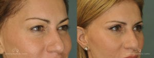 Upper Blepharoplasty Before and After Photos Patient 1A