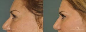 Upper Blepharoplasty Before and After Photos Patient 1B