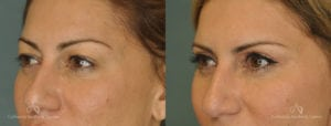 Upper Blepharoplasty Before and After Photos Patient 1C