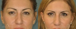Upper Blepharoplasty Before and After Photos Patient 1D