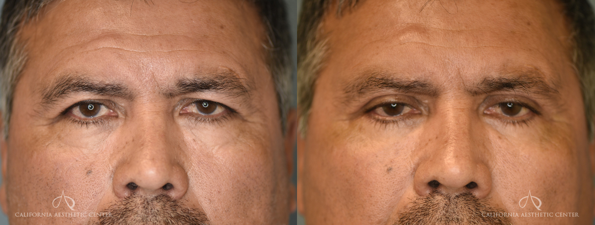 Patient 5 Blepharoplasty Before and After Front View