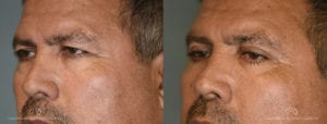 Patient 5 Blepharoplasty Before and After Left Oblique View