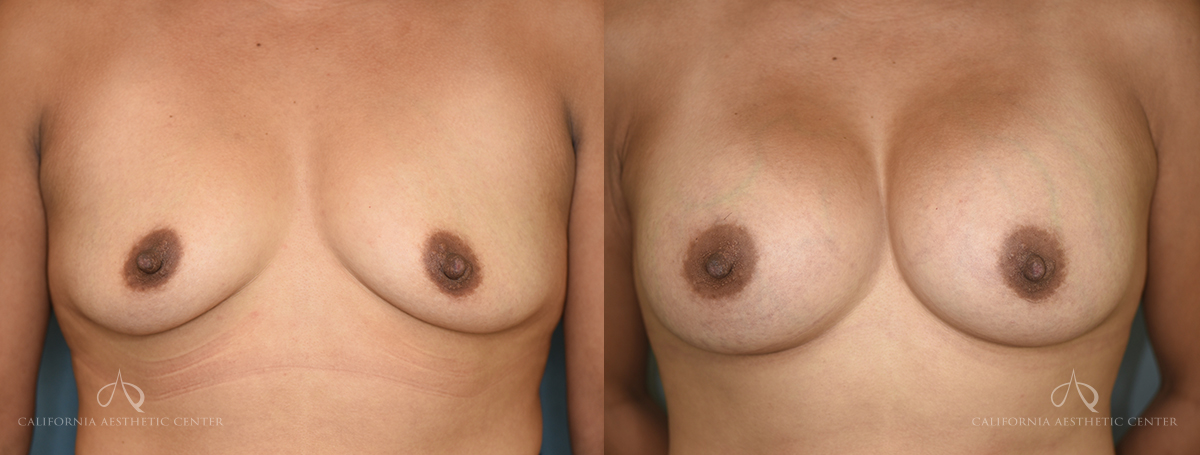 Patient 10 Breast Augmentation Before and After Front View