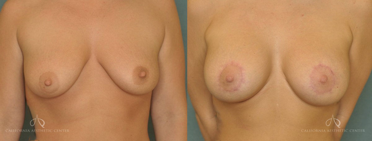 Patient 9 Breast Augmentation Before and After Front View