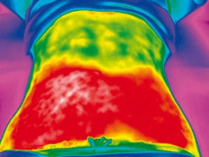 Vanquish Post Procedure Thermography Scan