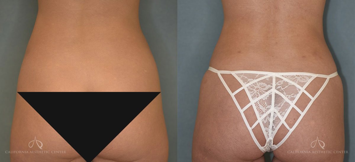 Before & After of Dr. Vu's Liposuction Patient