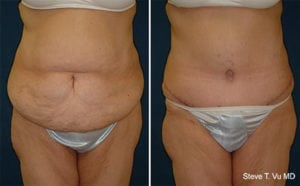Before and After Tummy Tuck Patient Example
