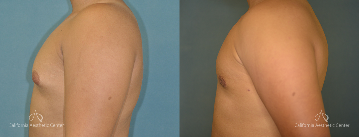 Gynecomastia Before and After Photos Patient 1A