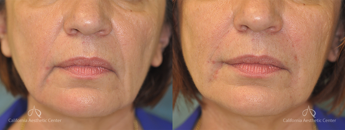 Juvederm Before and After Photos Patient 1