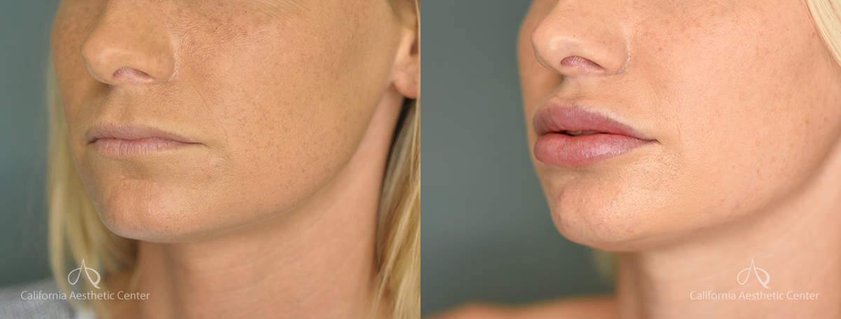 Lip Filler Before and After Patient 1A