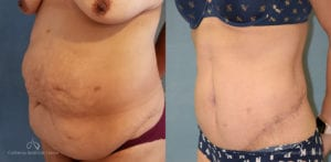 Panniculectomy Before and After Photos Patient 1A