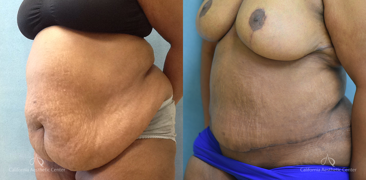 Panniculectomy Before and After Photos Patient 2A