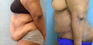 Panniculectomy Before and After Photos Patient 2B